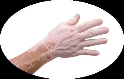 Bielactwo (albinizm)