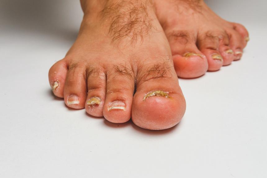 grzybica skóry