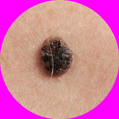 Czerniak skóry