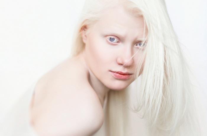 kobieta cierpiąca na bielastwo