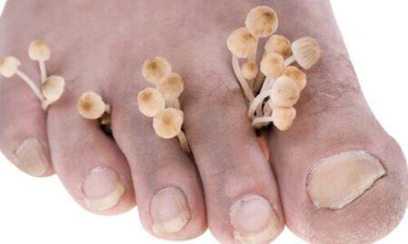 Powikłania grzybicy paznokci