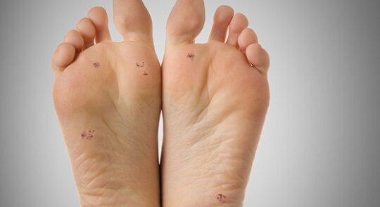Leczenie kurzajek na stopach