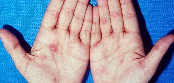 Objawy kiły