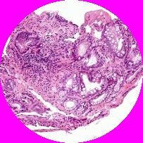 Objawy pęcherzycy