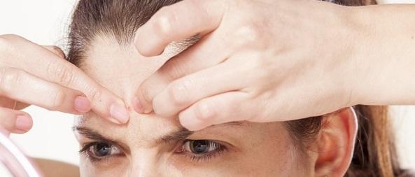 Przyczyny trądziku pospolitego