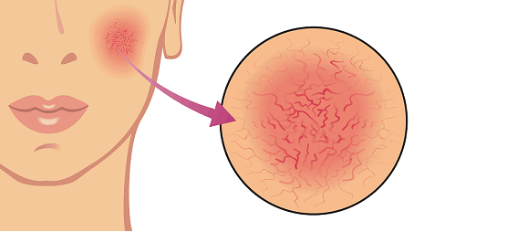 Przyczyny trądziku różowatego