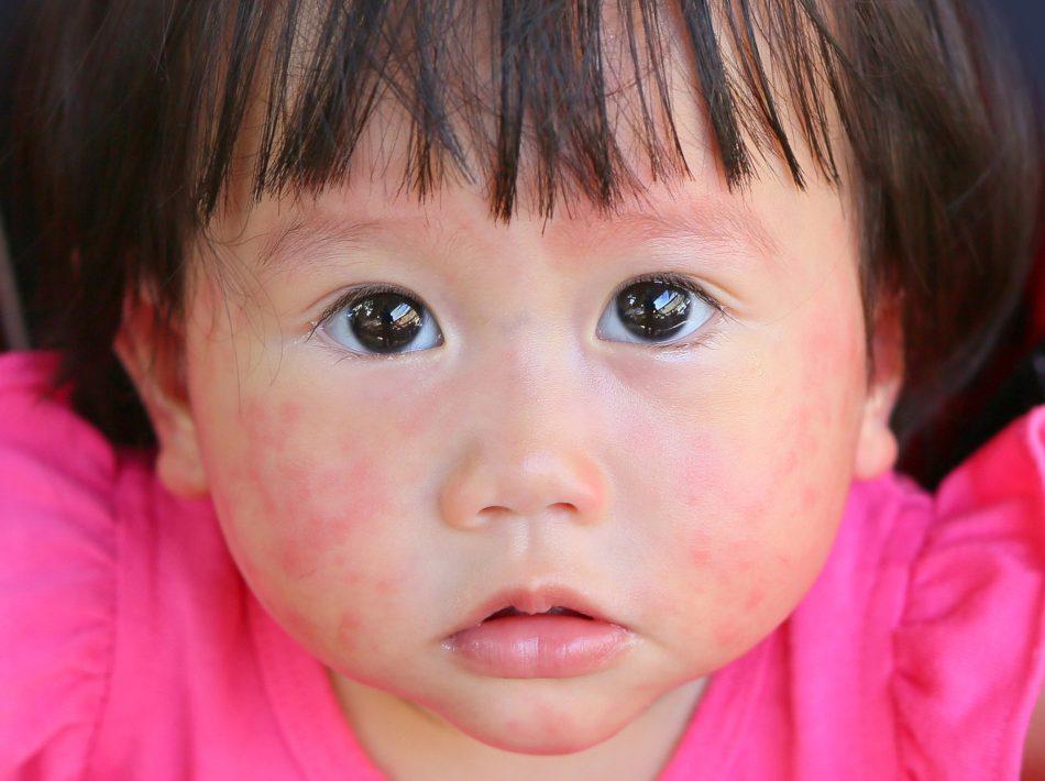 objawy trądziku różowatego