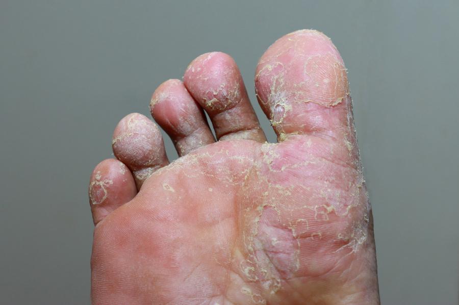 powikłania grzybicy skóry