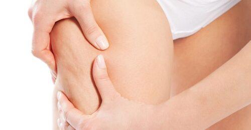 Skuteczne metody na cellulit