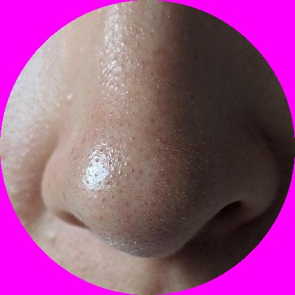 Sebum na nosie