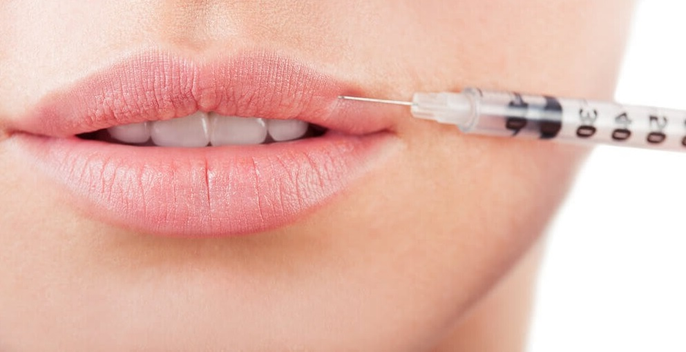 Powiększanie ust - jak wygląda wizyta kwalifikacyjna?